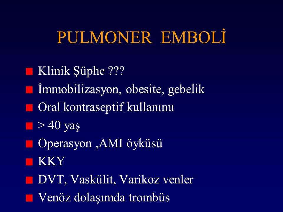 PULMONER EMBOLİ Klinik Şüphe İmmobilizasyon, obesite, gebelik