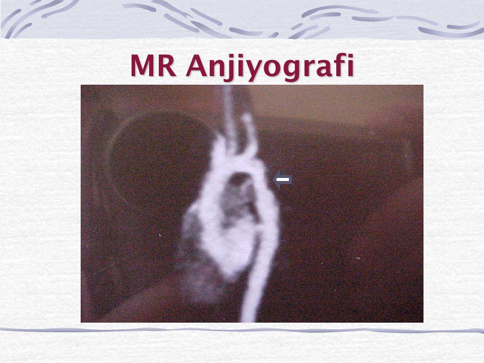 MR Anjiyografi