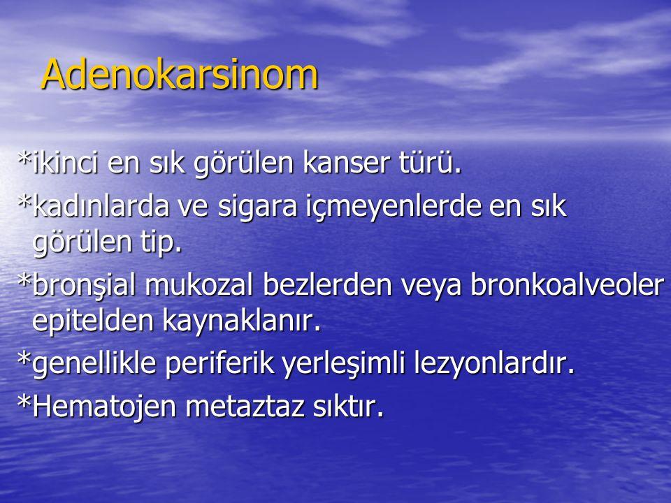 Adenokarsinom *ikinci en sık görülen kanser türü.