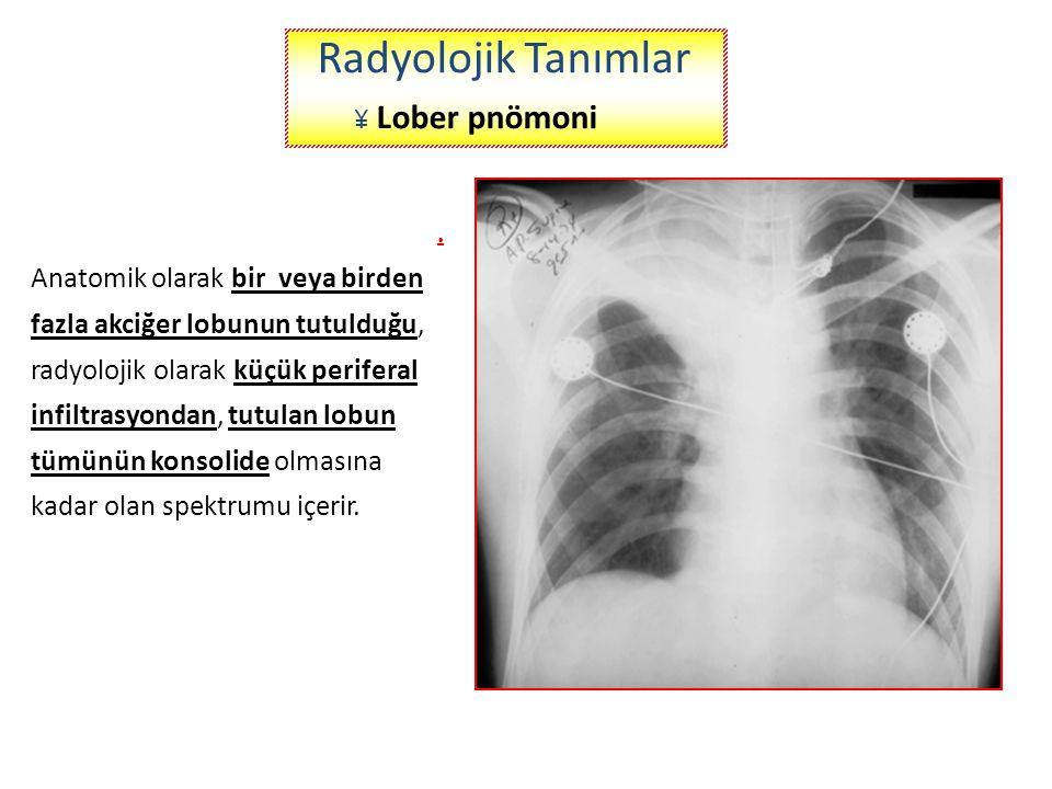 Radyolojik Tanımlar Radyolojik Tanımlar ¥ Lober pnömoni