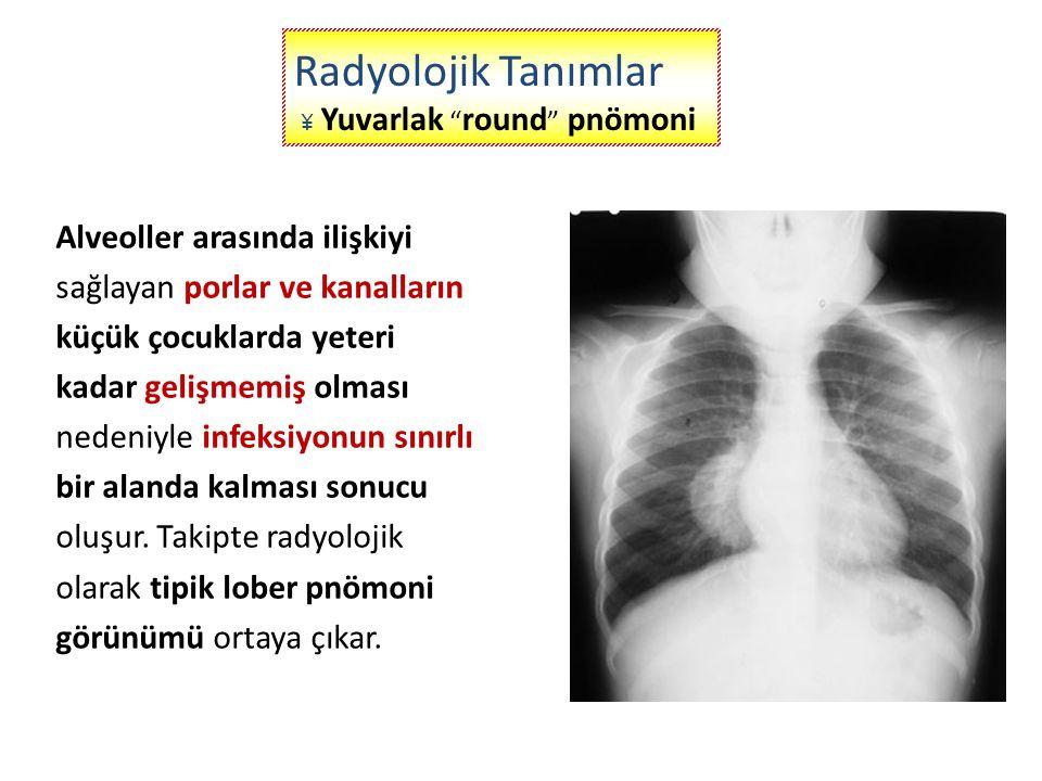 Radyolojik Tanımlar ¥ Yuvarlak round pnömoni