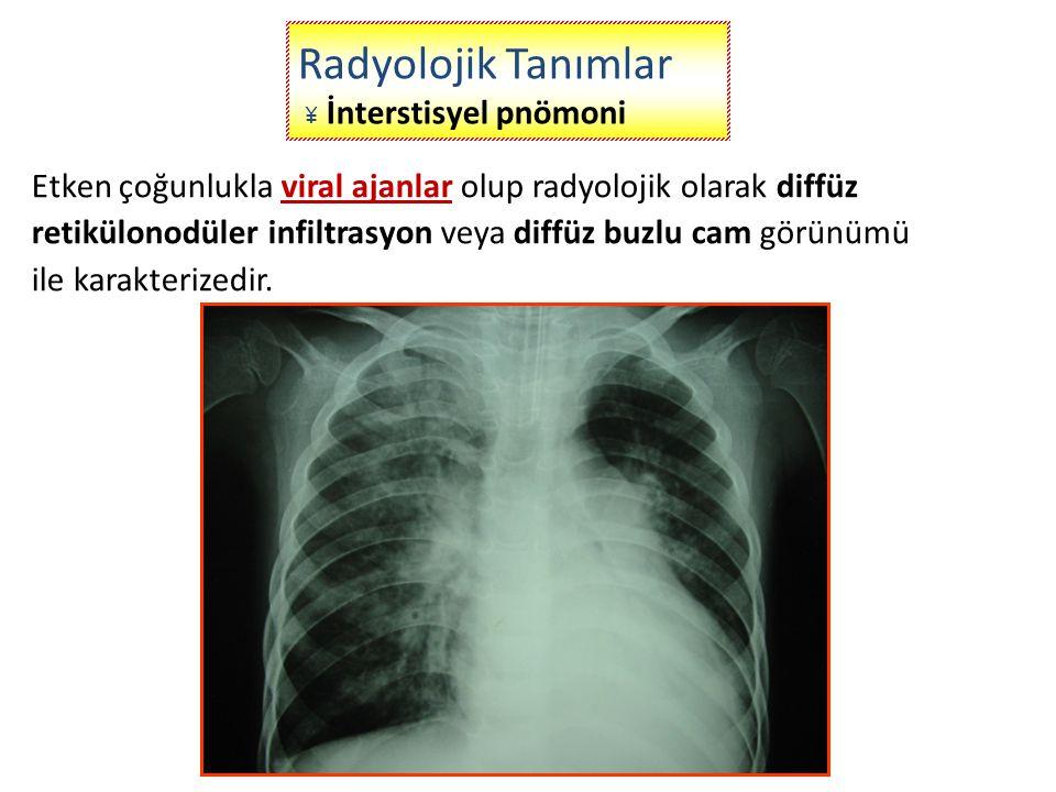 Radyolojik Tanımlar ¥ İnterstisyel pnömoni