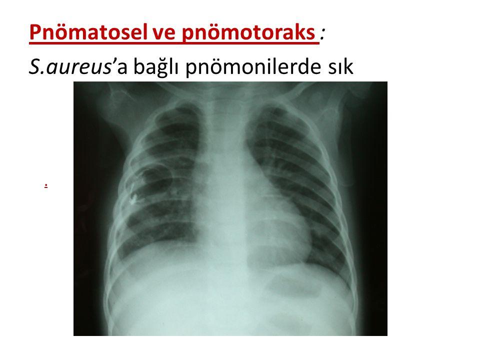 Pnömatosel ve pnömotoraks : S.aureus'a bağlı pnömonilerde sık