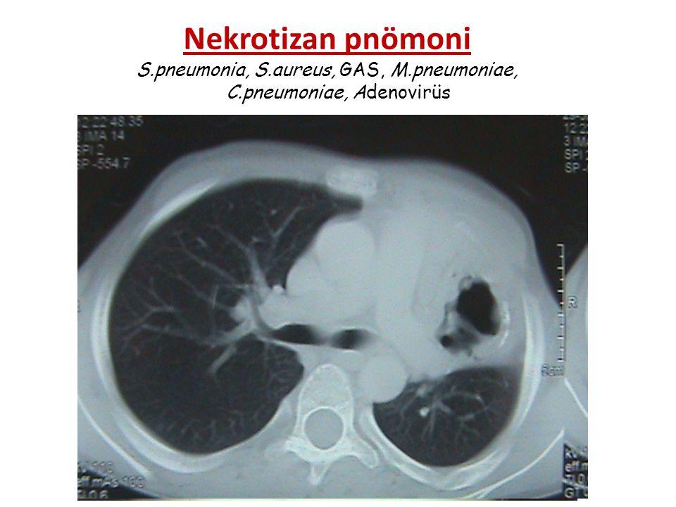 Nekrotizan pnömoni S. pneumonia, S. aureus, GAS, M. pneumoniae, C