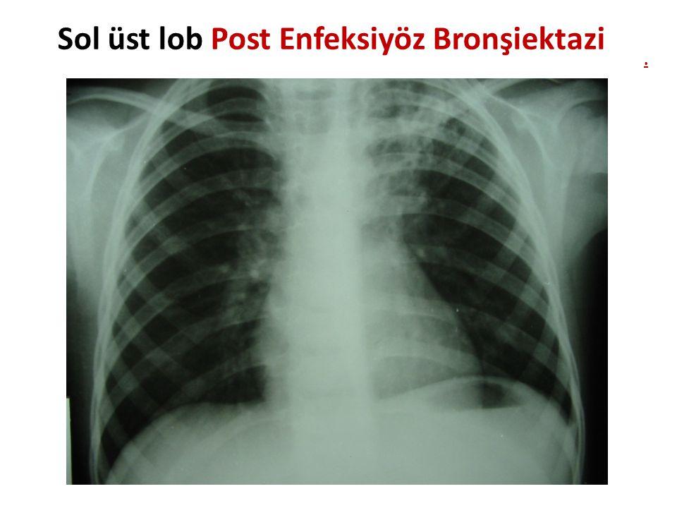 Sol üst lob Post Enfeksiyöz Bronşiektazi