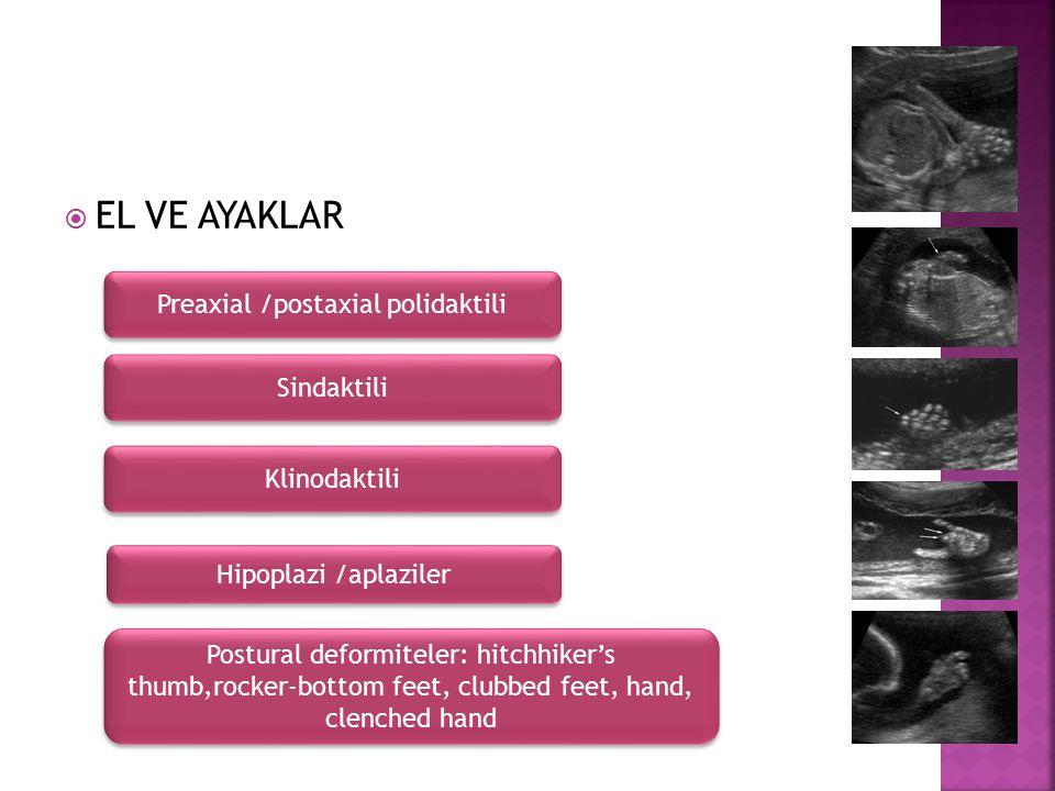 Preaxial /postaxial polidaktili