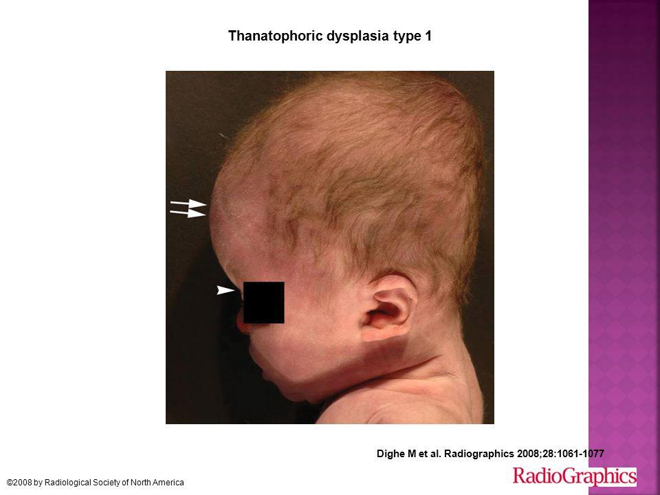 Thanatophoric dysplasia type 1