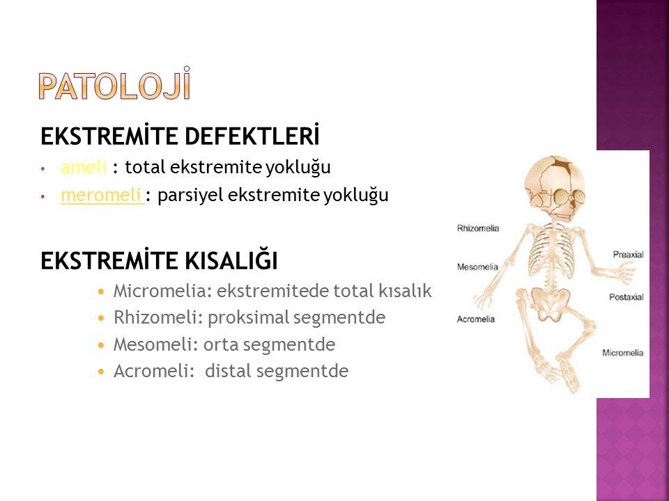 Patolojİ EKSTREMİTE DEFEKTLERİ EKSTREMİTE KISALIĞI