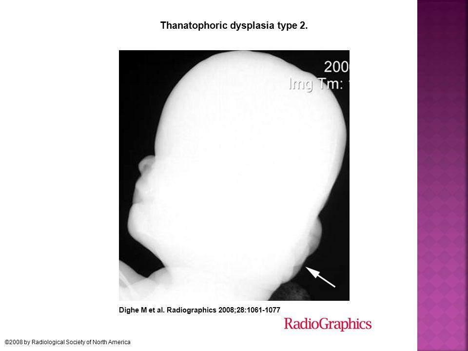 Thanatophoric dysplasia type 2.