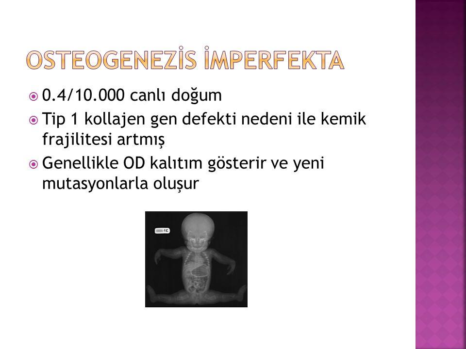 Osteogenezİs İmperfekta