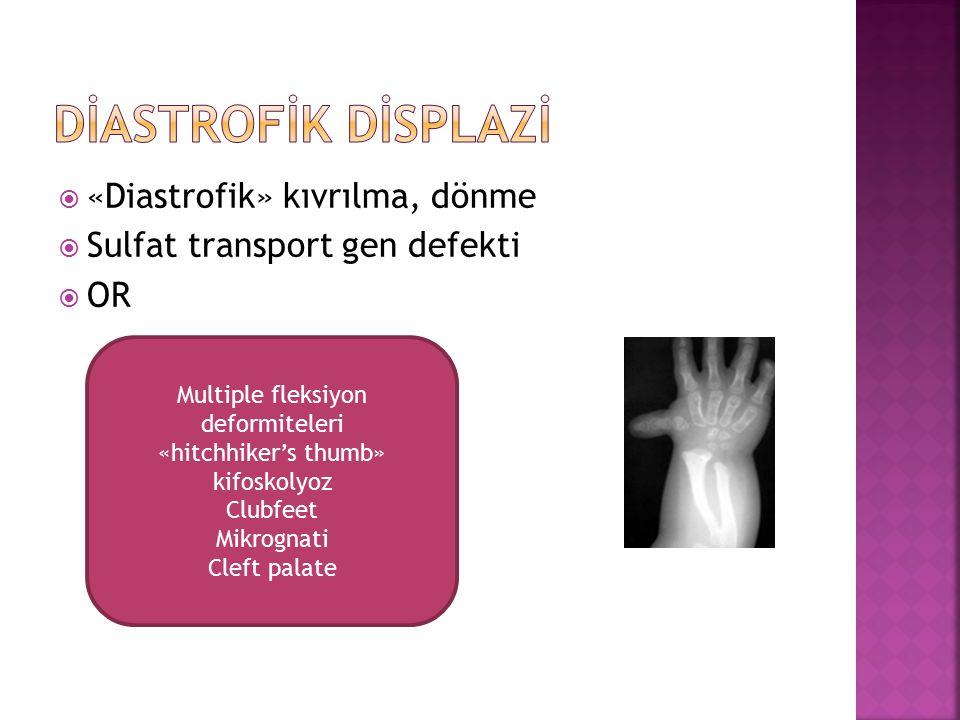 Multiple fleksiyon deformiteleri