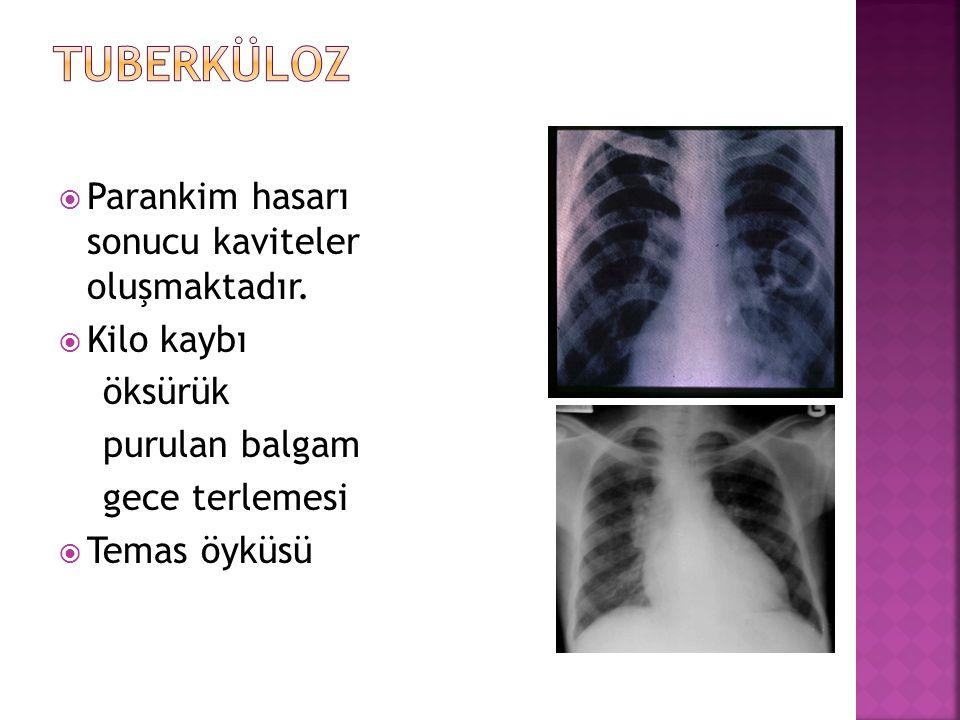 Tuberküloz Parankim hasarı sonucu kaviteler oluşmaktadır. Kilo kaybı