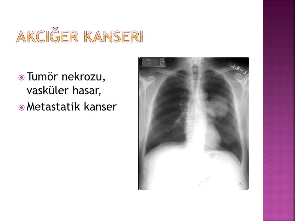 Akciğer Kanseri Tumör nekrozu, vasküler hasar, Metastatik kanser