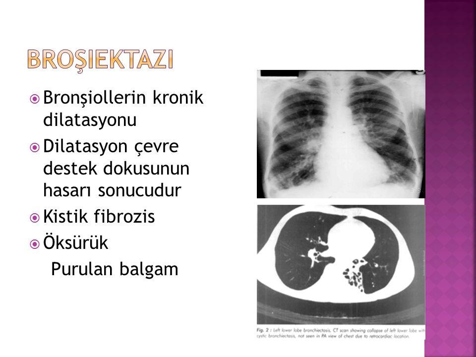 Broşiektazi Bronşiollerin kronik dilatasyonu