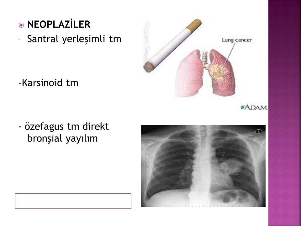 NEOPLAZİLER Santral yerleşimli tm -Karsinoid tm - özefagus tm direkt bronşial yayılım