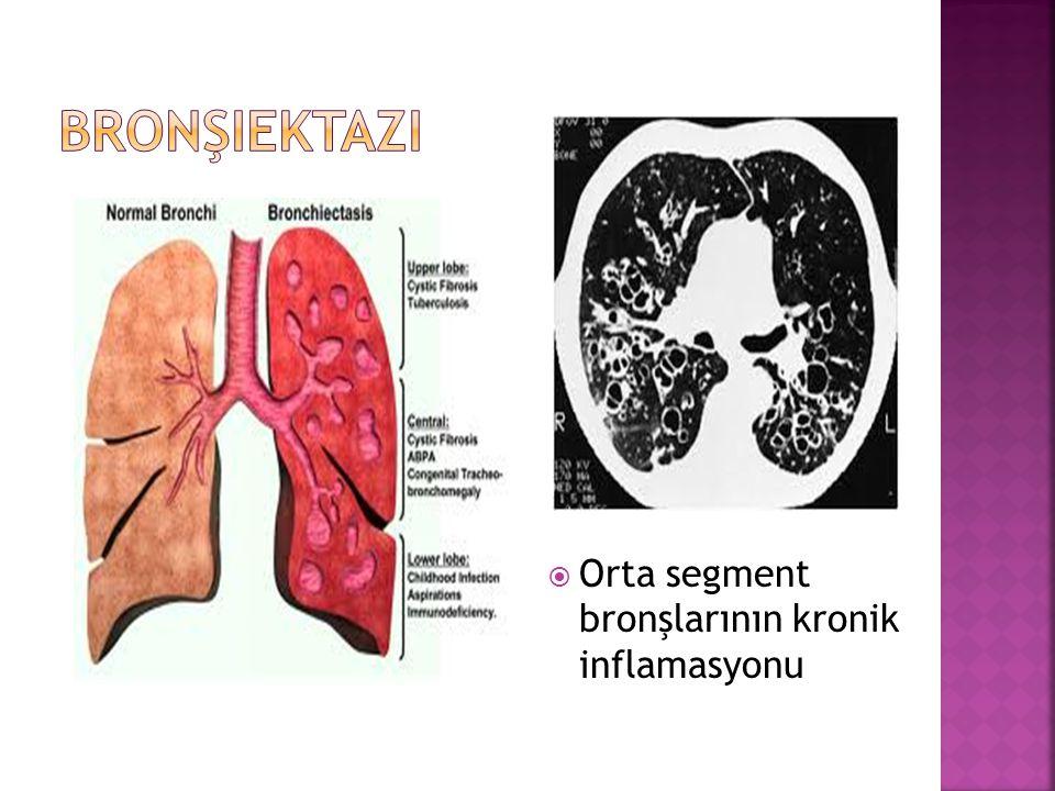 Bronşiektazi Orta segment bronşlarının kronik inflamasyonu