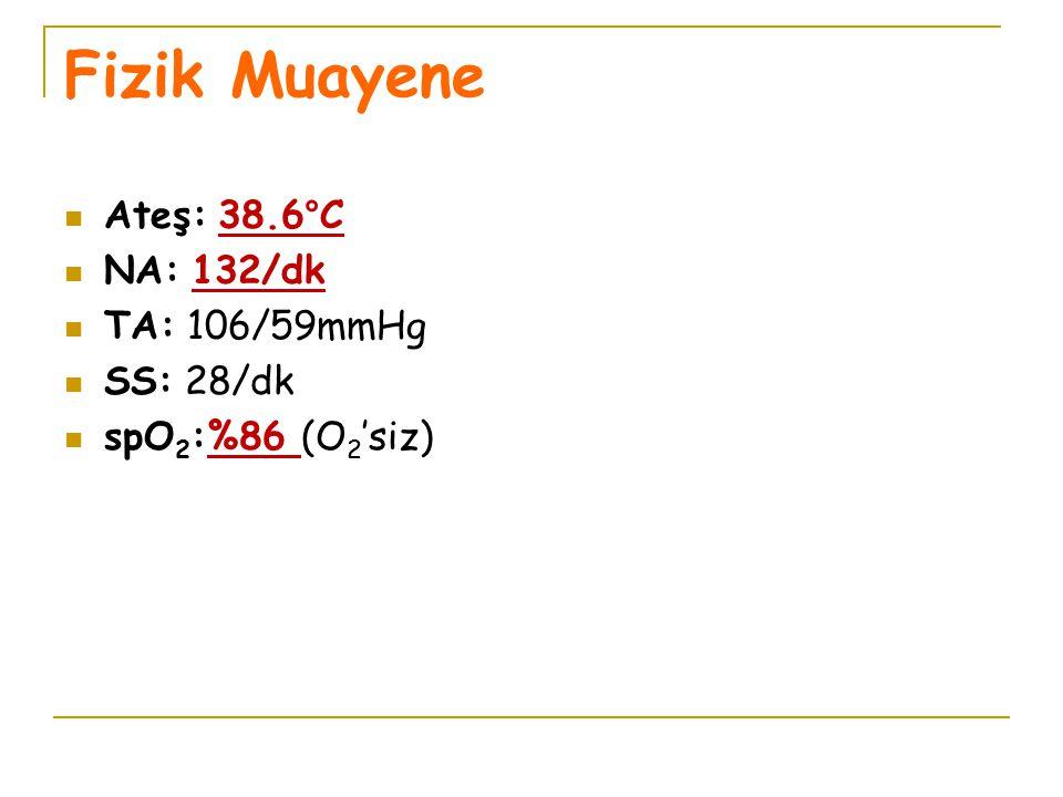 Fizik Muayene Ateş: 38.6°C NA: 132/dk TA: 106/59mmHg SS: 28/dk