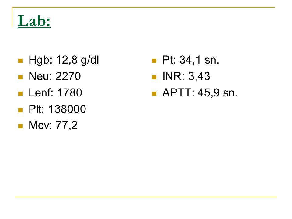 Lab: Hgb: 12,8 g/dl Neu: 2270 Lenf: 1780 Plt: 138000 Mcv: 77,2