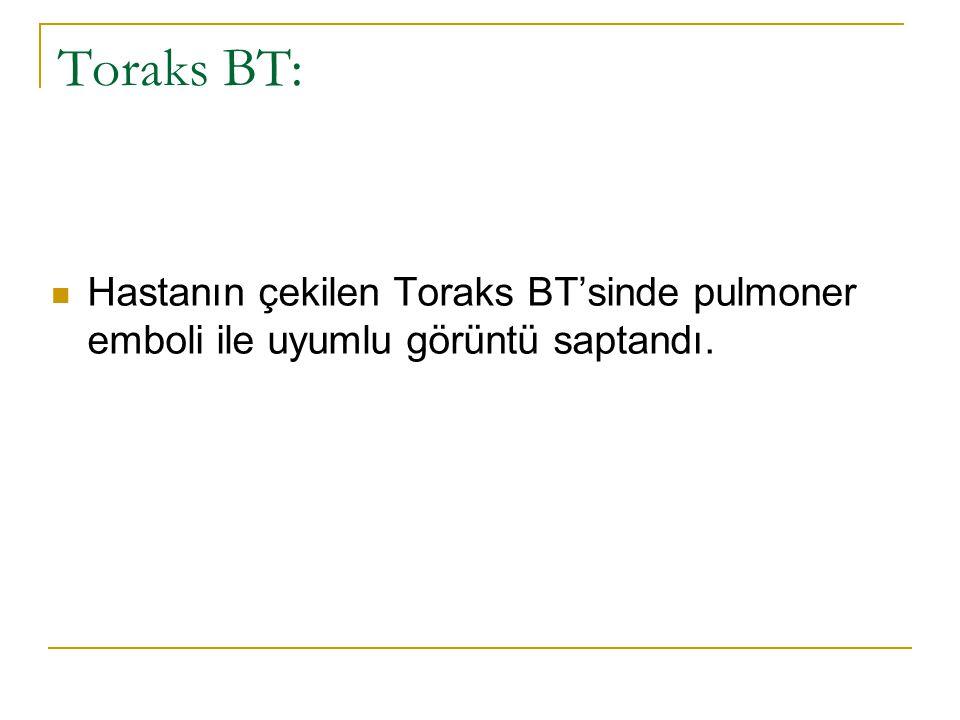 Toraks BT: Hastanın çekilen Toraks BT'sinde pulmoner emboli ile uyumlu görüntü saptandı.