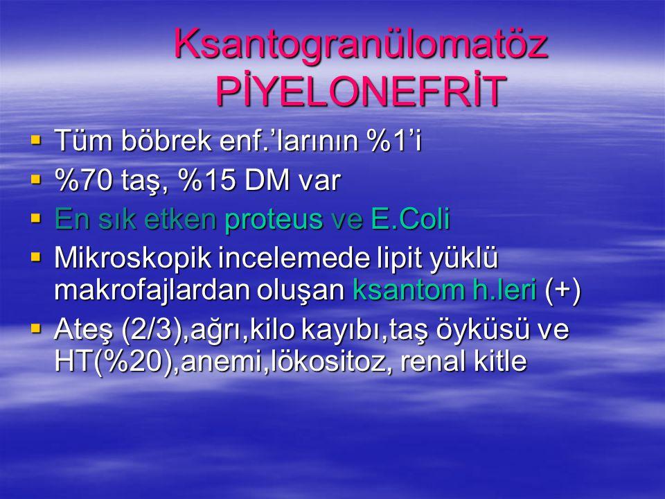 Ksantogranülomatöz PİYELONEFRİT