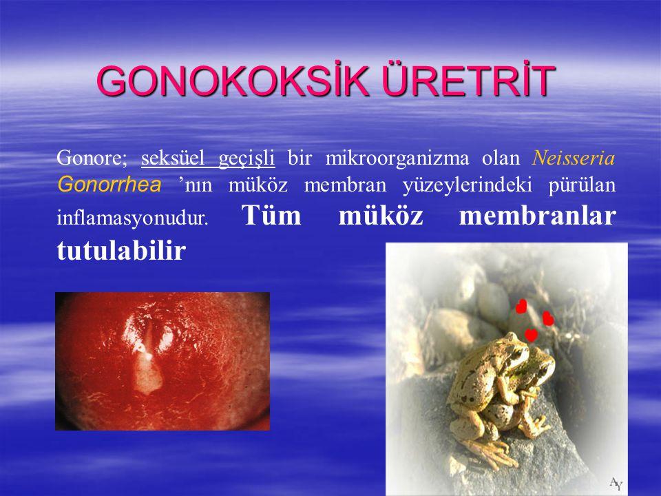 GONOKOKSİK ÜRETRİT