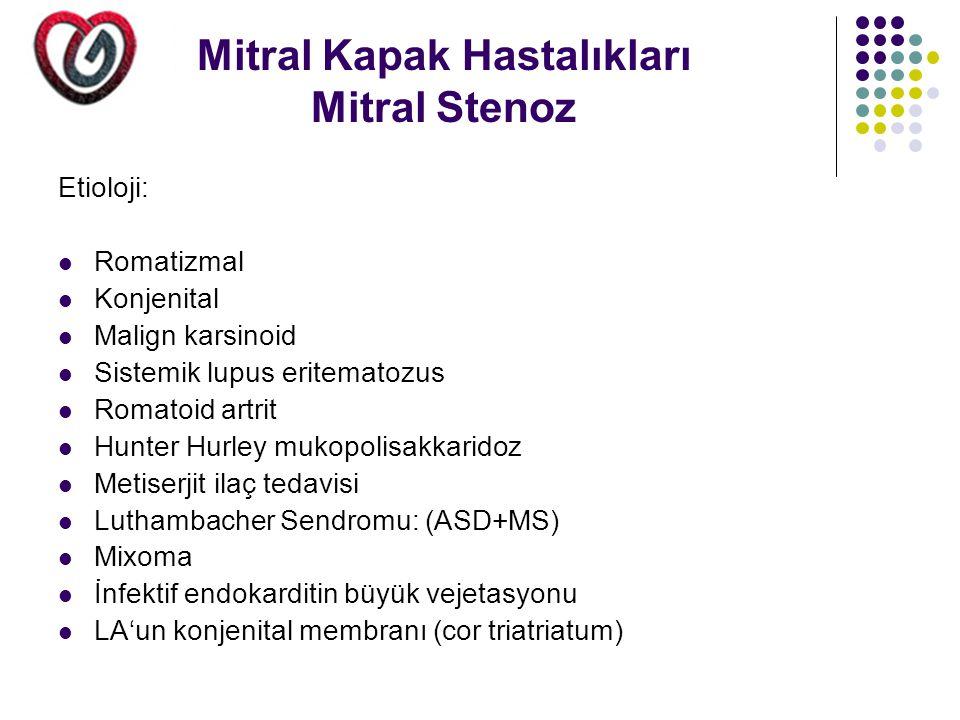 Mitral Kapak Hastalıkları Mitral Stenoz