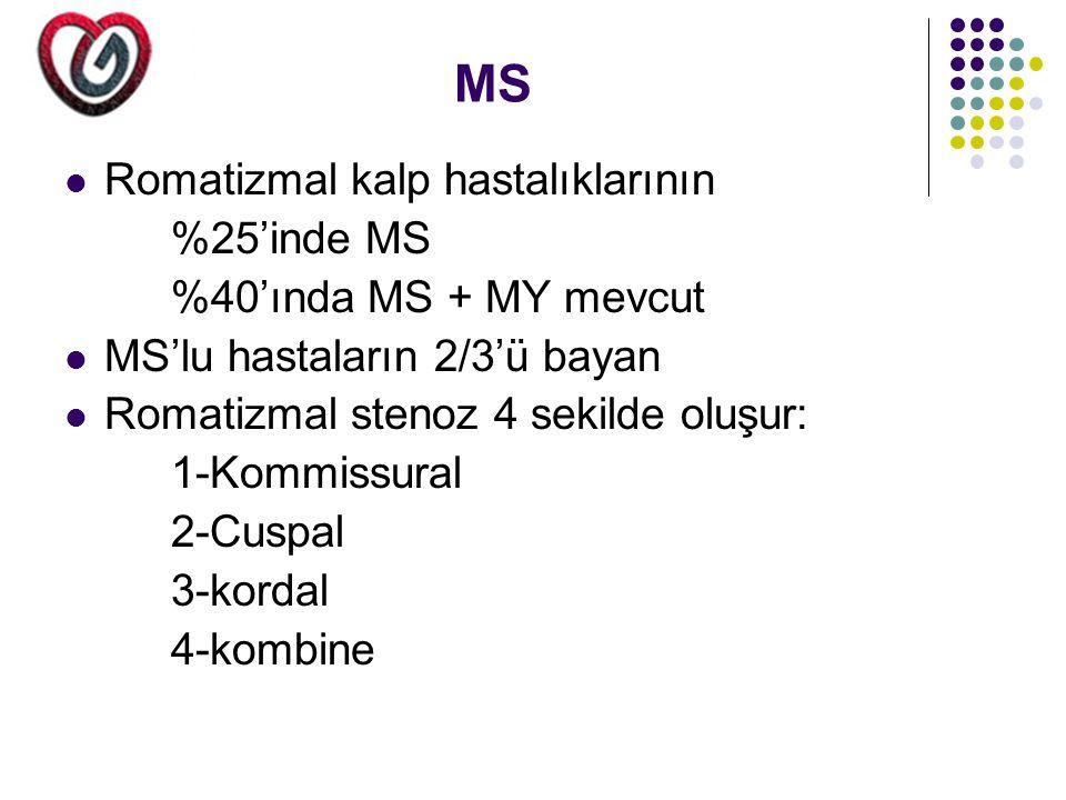 MS Romatizmal kalp hastalıklarının %25'inde MS %40'ında MS + MY mevcut
