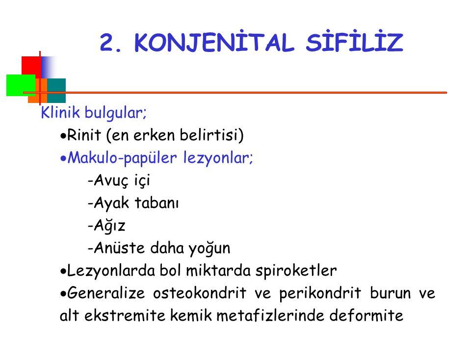 2. KONJENİTAL SİFİLİZ Klinik bulgular; Rinit (en erken belirtisi)