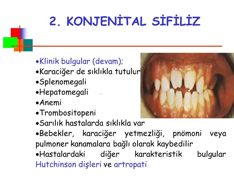 2. KONJENİTAL SİFİLİZ Klinik bulgular (devam);