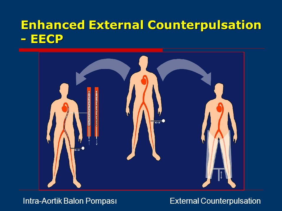 Enhanced External Counterpulsation - EECP