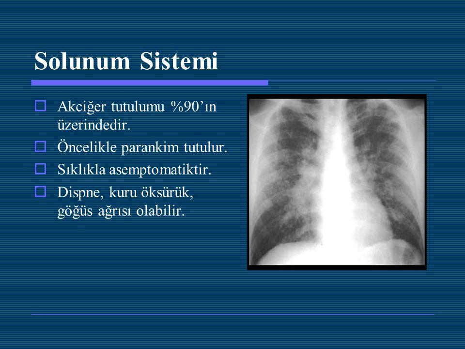 Solunum Sistemi Akciğer tutulumu %90'ın üzerindedir.