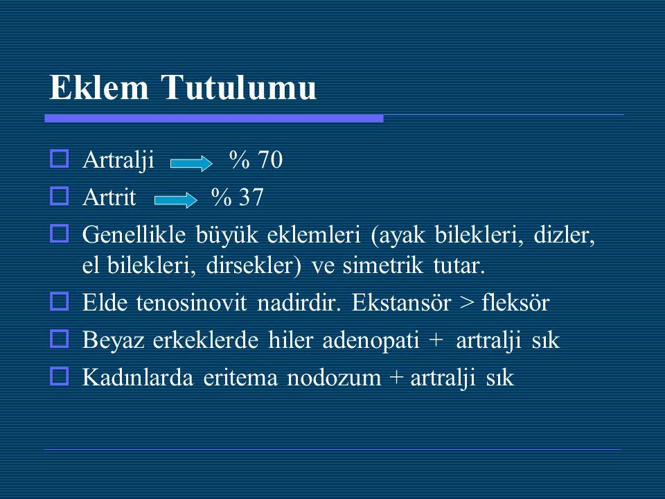 Eklem Tutulumu Artralji % 70 Artrit % 37
