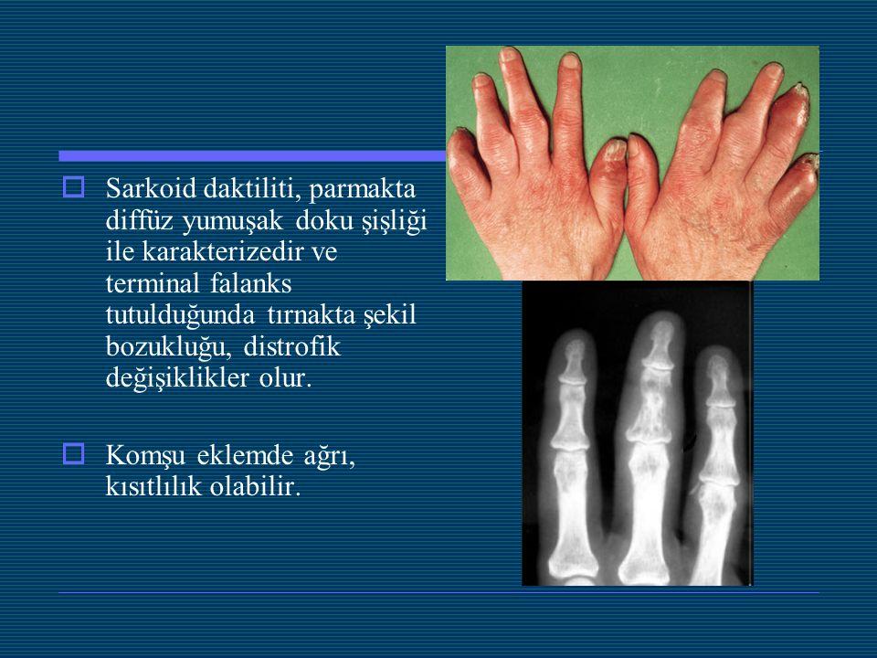 Sarkoid daktiliti, parmakta diffüz yumuşak doku şişliği ile karakterizedir ve terminal falanks tutulduğunda tırnakta şekil bozukluğu, distrofik değişiklikler olur.
