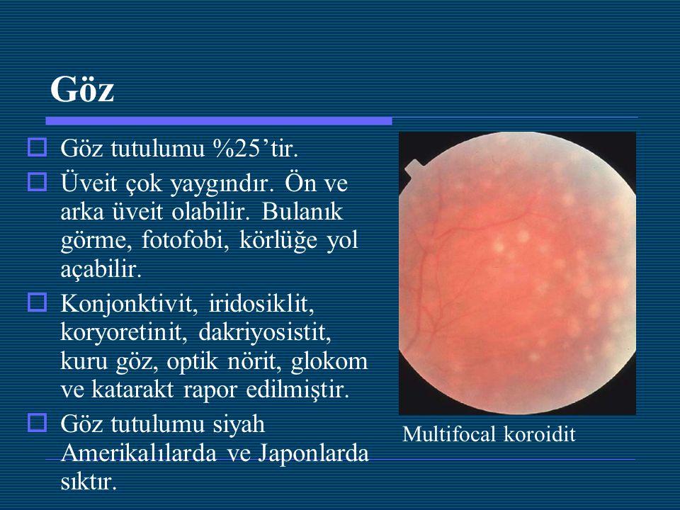 Göz Göz tutulumu %25'tir. Üveit çok yaygındır. Ön ve arka üveit olabilir. Bulanık görme, fotofobi, körlüğe yol açabilir.