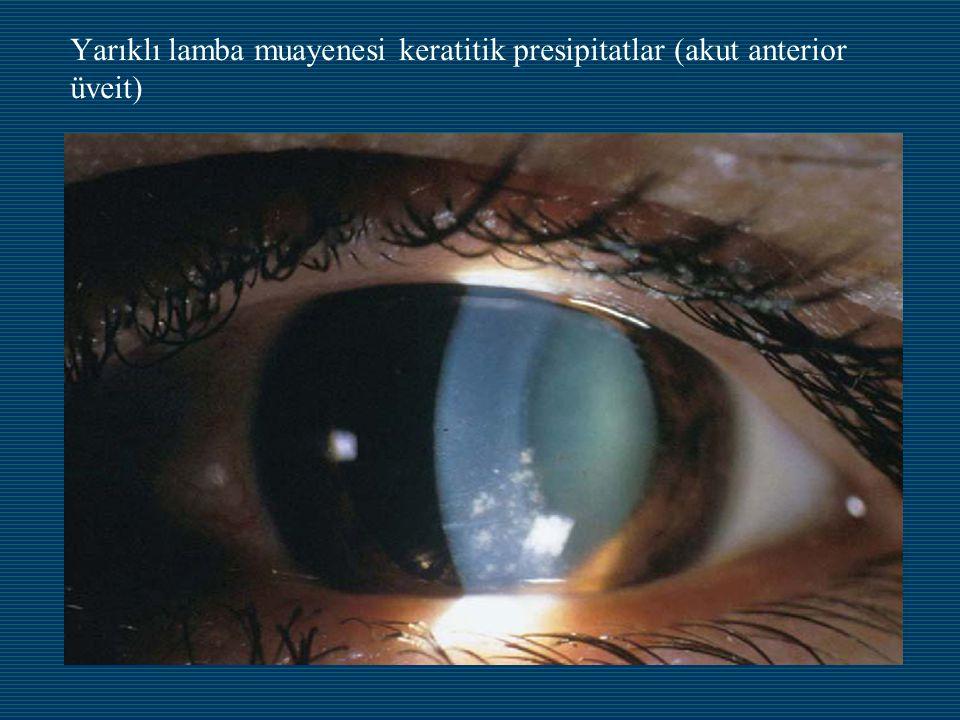 Yarıklı lamba muayenesi keratitik presipitatlar (akut anterior üveit)