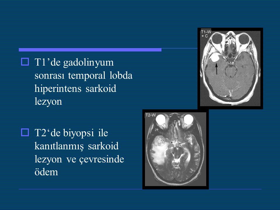 T1'de gadolinyum sonrası temporal lobda hiperintens sarkoid lezyon
