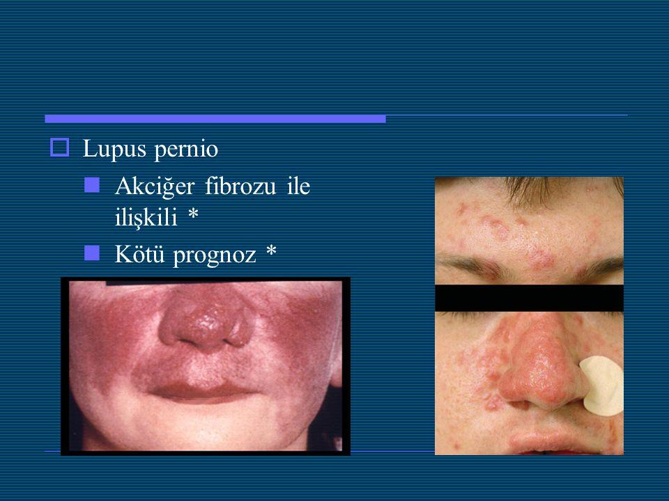 Lupus pernio Akciğer fibrozu ile ilişkili * Kötü prognoz *