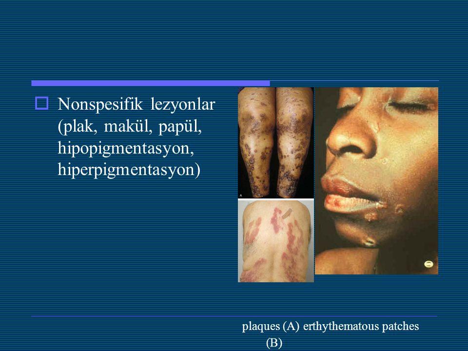 Nonspesifik lezyonlar (plak, makül, papül, hipopigmentasyon, hiperpigmentasyon)