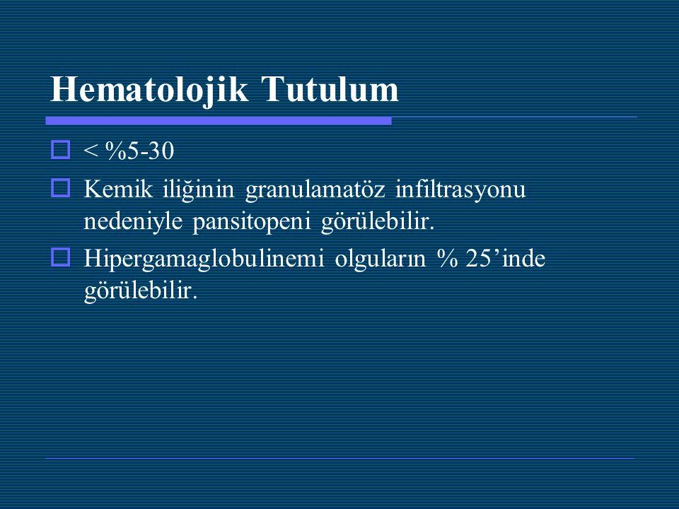 Hematolojik Tutulum < %5-30
