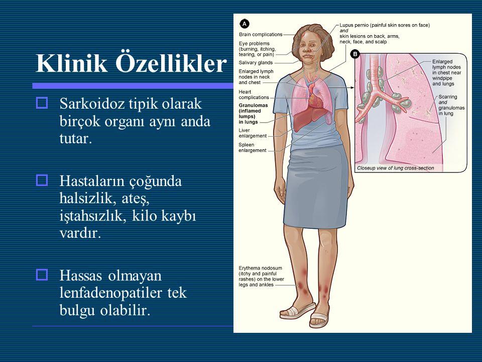 Klinik Özellikler Sarkoidoz tipik olarak birçok organı aynı anda tutar. Hastaların çoğunda halsizlik, ateş, iştahsızlık, kilo kaybı vardır.