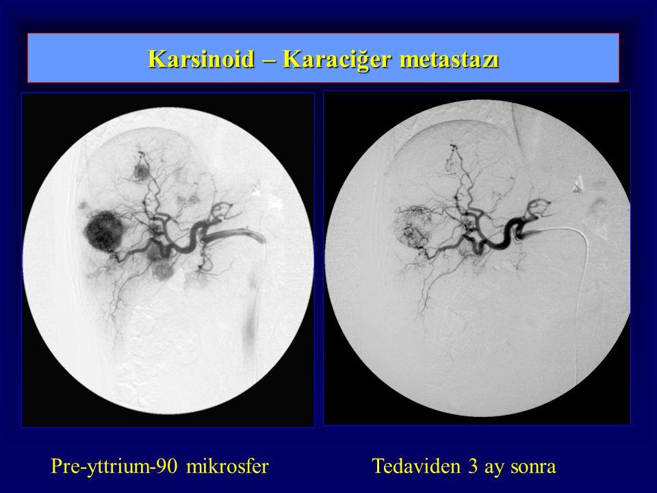 Karsinoid – Karaciğer metastazı