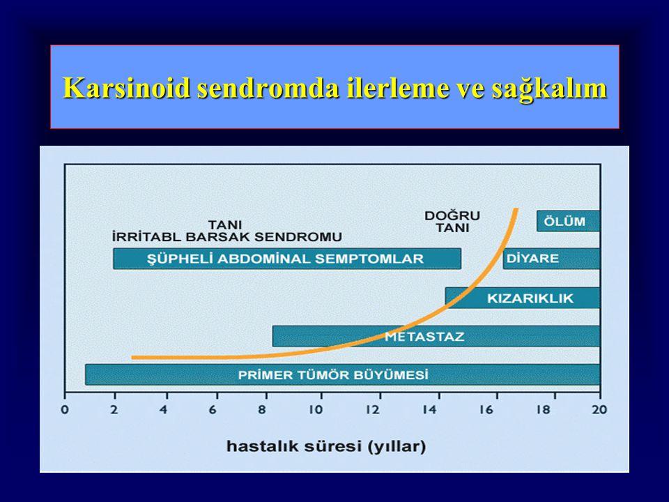 Karsinoid sendromda ilerleme ve sağkalım