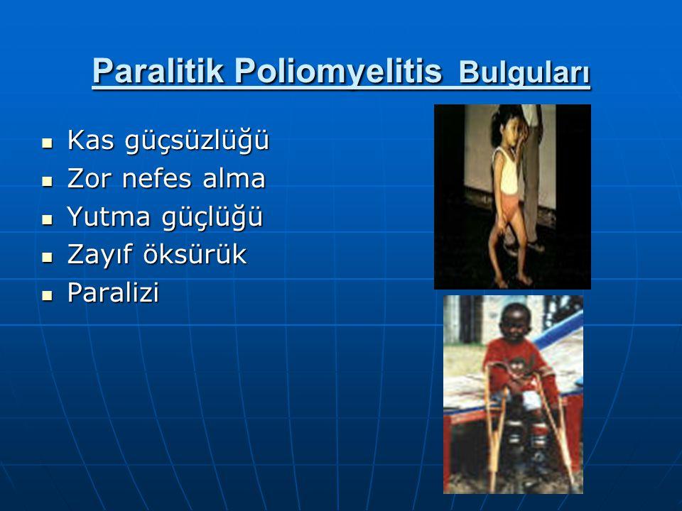 Paralitik Poliomyelitis Bulguları