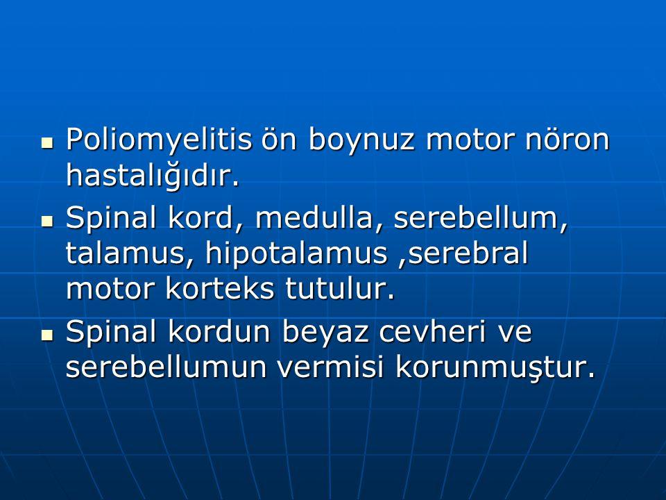 Poliomyelitis ön boynuz motor nöron hastalığıdır.