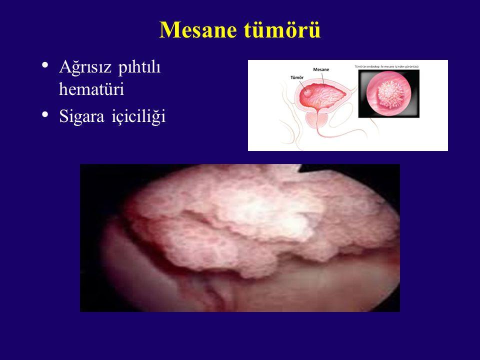 Mesane tümörü Ağrısız pıhtılı hematüri Sigara içiciliği