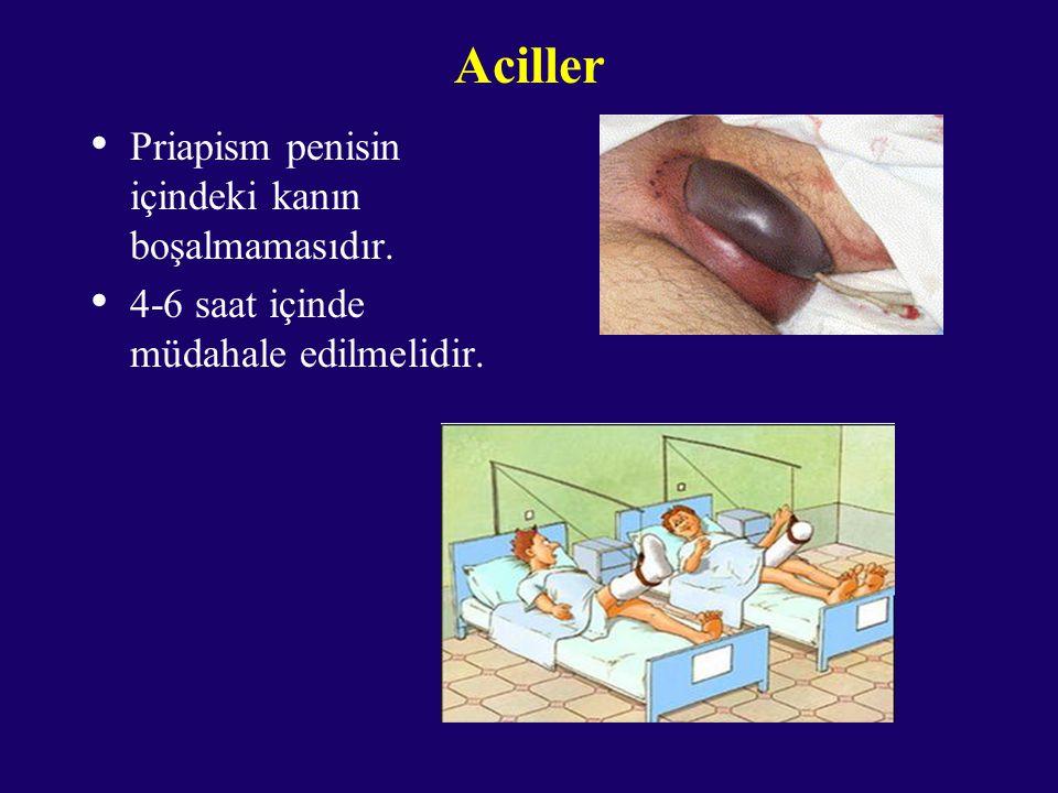 Aciller Priapism penisin içindeki kanın boşalmamasıdır.