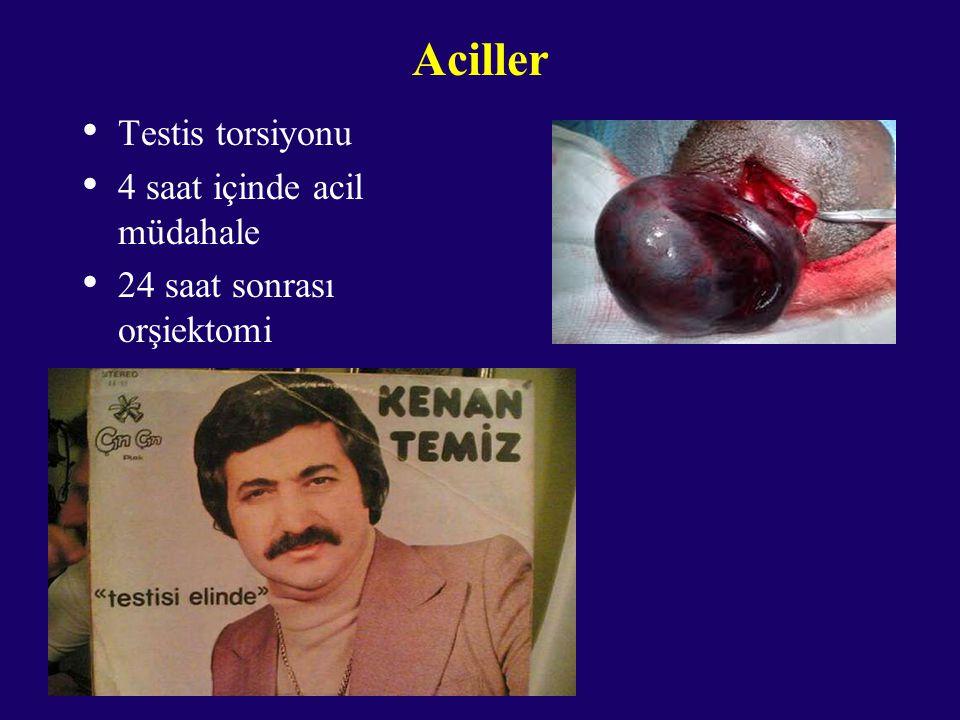 Aciller Testis torsiyonu 4 saat içinde acil müdahale