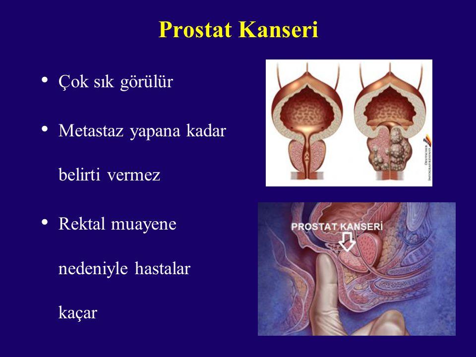 Prostat Kanseri Çok sık görülür Metastaz yapana kadar belirti vermez