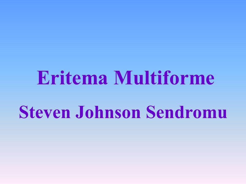 Steven Johnson Sendromu