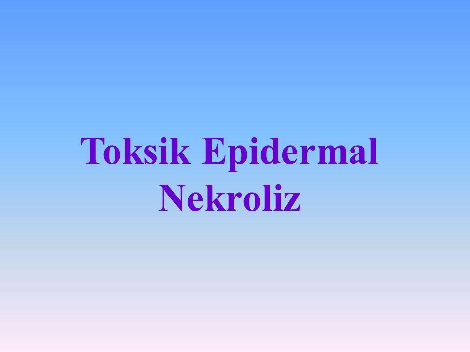 Toksik Epidermal Nekroliz